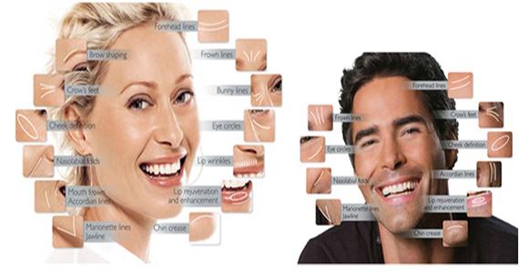 Αισθητική  Περιστοματικής  Περιοχής (Υαλουρονικό  Οξύ)