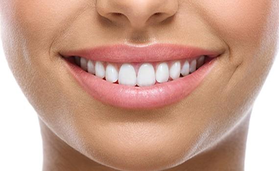 Τι να αποφύγετε για ένα λαμπερό χαμόγελο