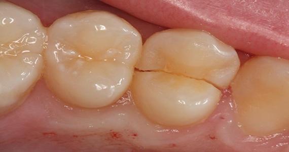 Τι προκαλεί ρωγμές στα δόντια;