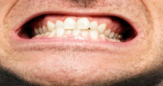 Βρυγμός ή τρίξιμο των δοντιών