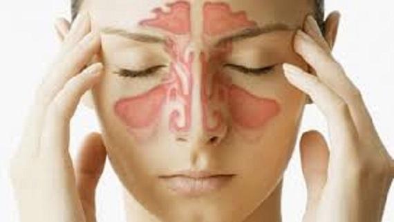 H Ιγμορίτιδα Ως Πηγή Οδοντικού Πόνου