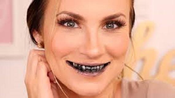 Διόρθωση Του Χρώματος Των Δοντιών