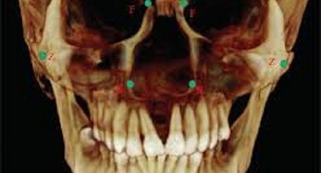 Tι Προδίδουν Για Εμάς Τα Δόντια Μας? ( Πρώτοι προγόμφιοι)