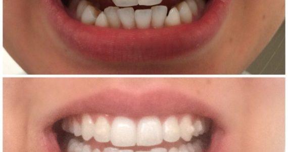5 Λόγοι Για Να Έχουμε Ίσια Δόντια (αόρατοι νάρθηκες ενηλίκων)