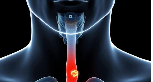 Η Περιοδοντική Νόσος Δεν Περιορίζεται Μόνο Στο Στόμα. Μπορεί να αυξήσει τον κίνδυνο για διαβήτη, καρδιακή νόσο και άνοια.