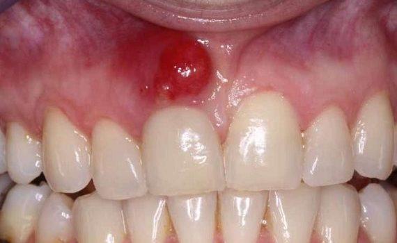 Κύστη Στα Ούλα (Οδοντικό Απόστημα)