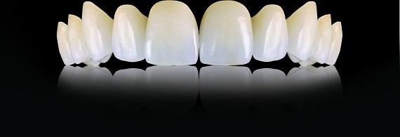 Οδοντιατρική Γέφυρα.