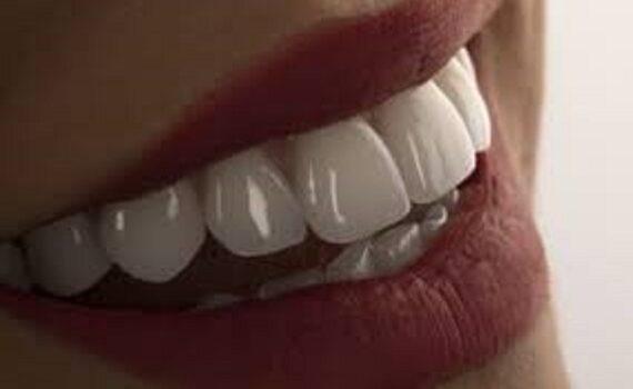 Ξεκόλλησε Η Στεφάνη – Θήκη Μας Ή Η Γέφυρα Μας? Πως Θα Διορθώσουμε Το Πρόβλημα Μέχρι Να Φτάσουμε Στον Οδοντίατρο.